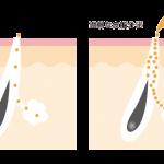 過剰な皮脂分泌はニキビの原因のひとつ